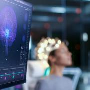 رابط مغز و رایانه ، BCI